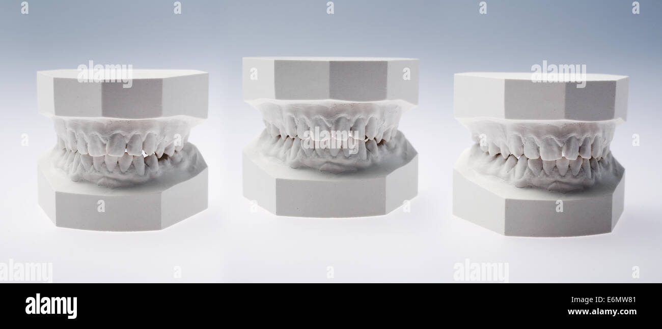 Front view of a plaster study models on white background - Stock Image