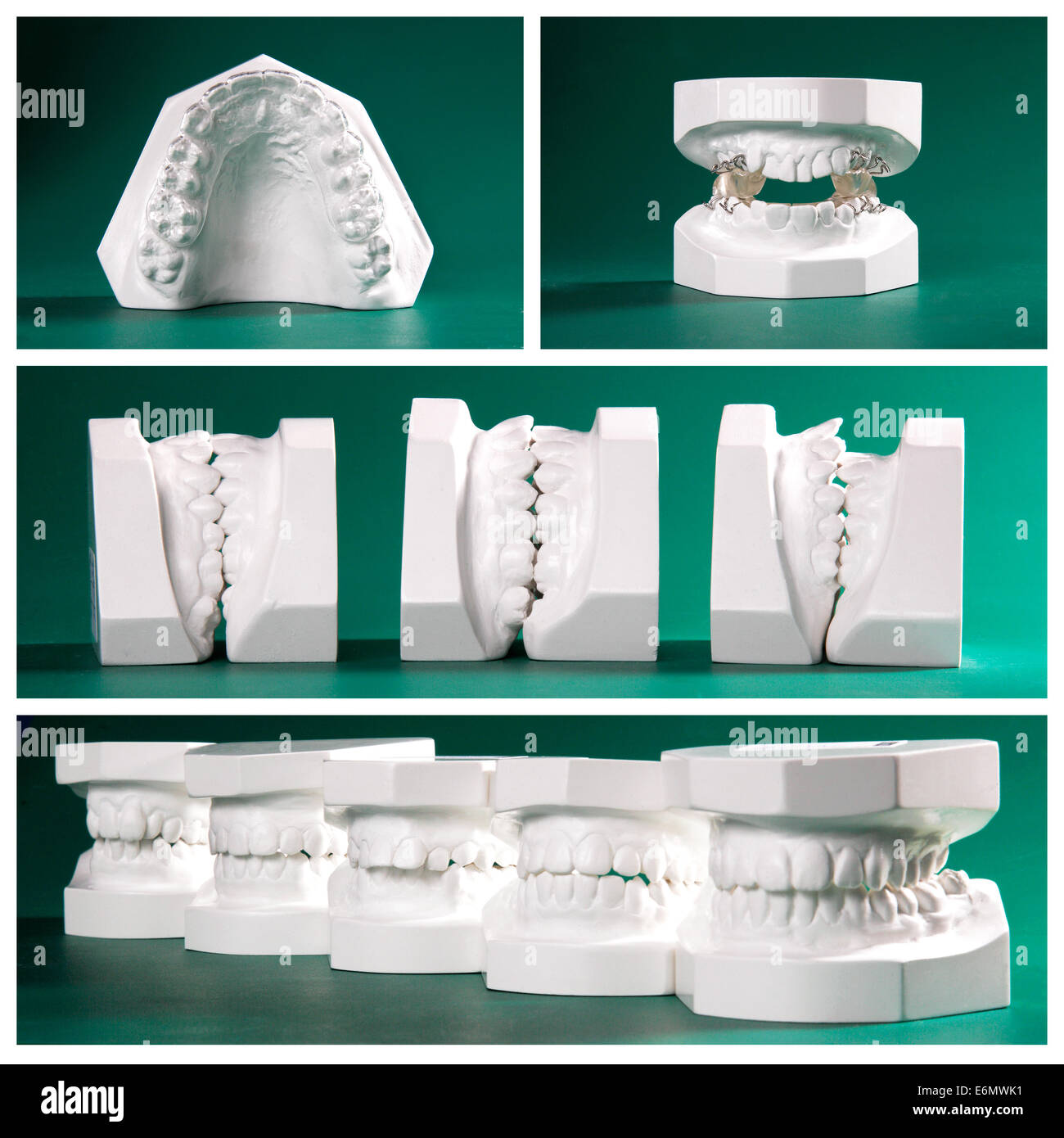 Compilation picture of dental study models on green background - Stock Image