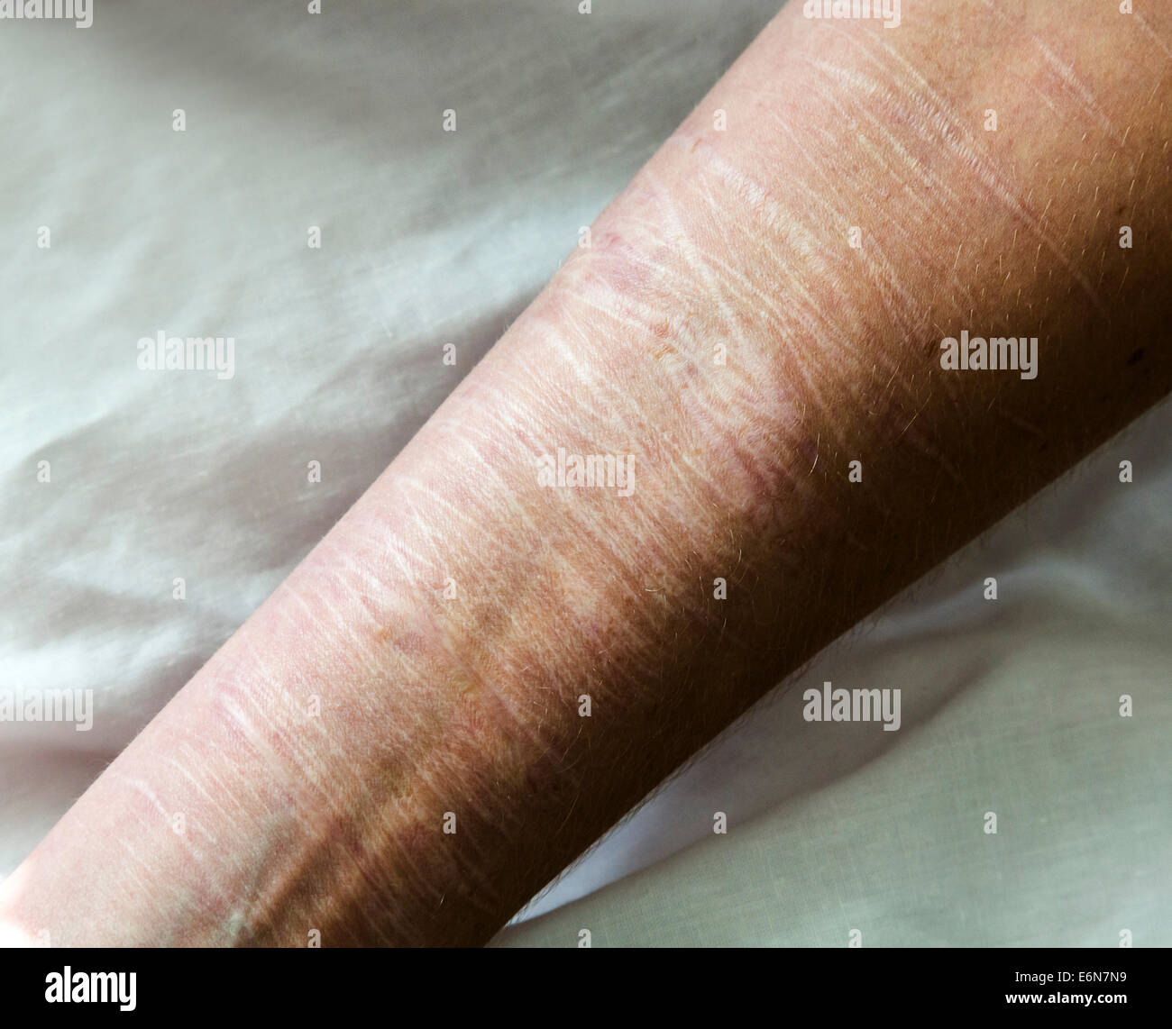 evidence of self harm on a womans arm Stock Photo