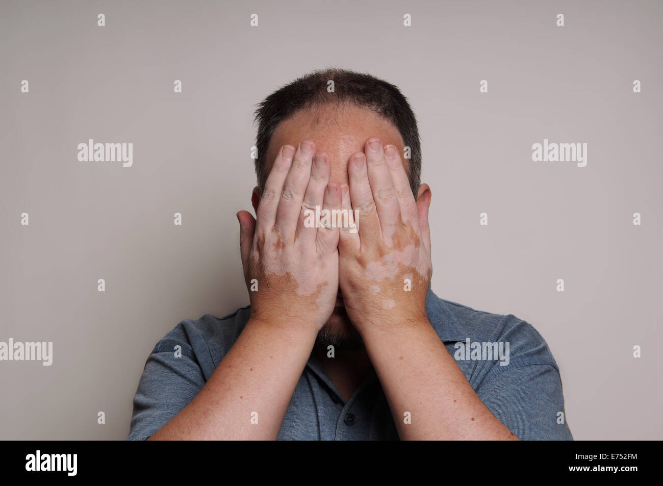 man with Vitiligo hiding face - Stock Image