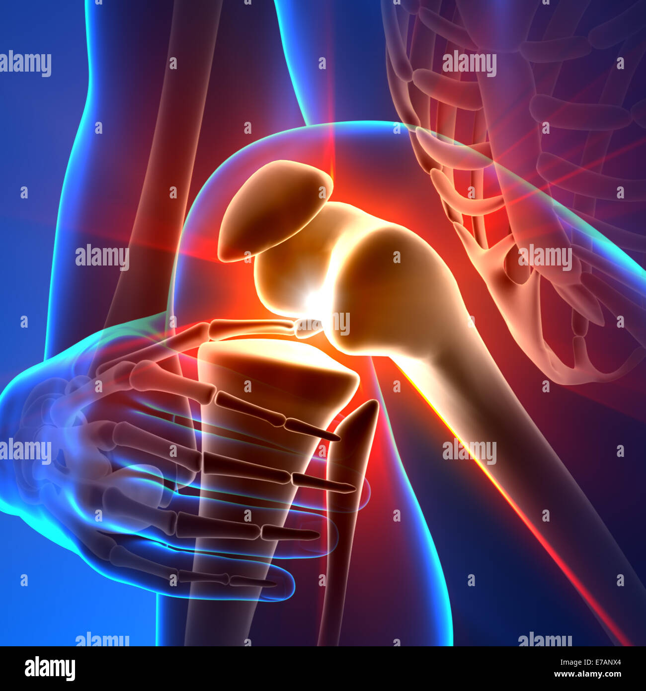 Pain Knee - Anatomy Rays - Stock Image