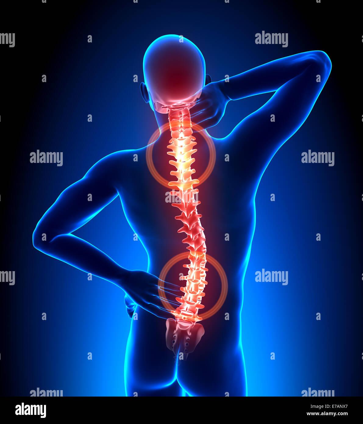 Male Hurt Backbone - Vertebrae Pain - Stock Image