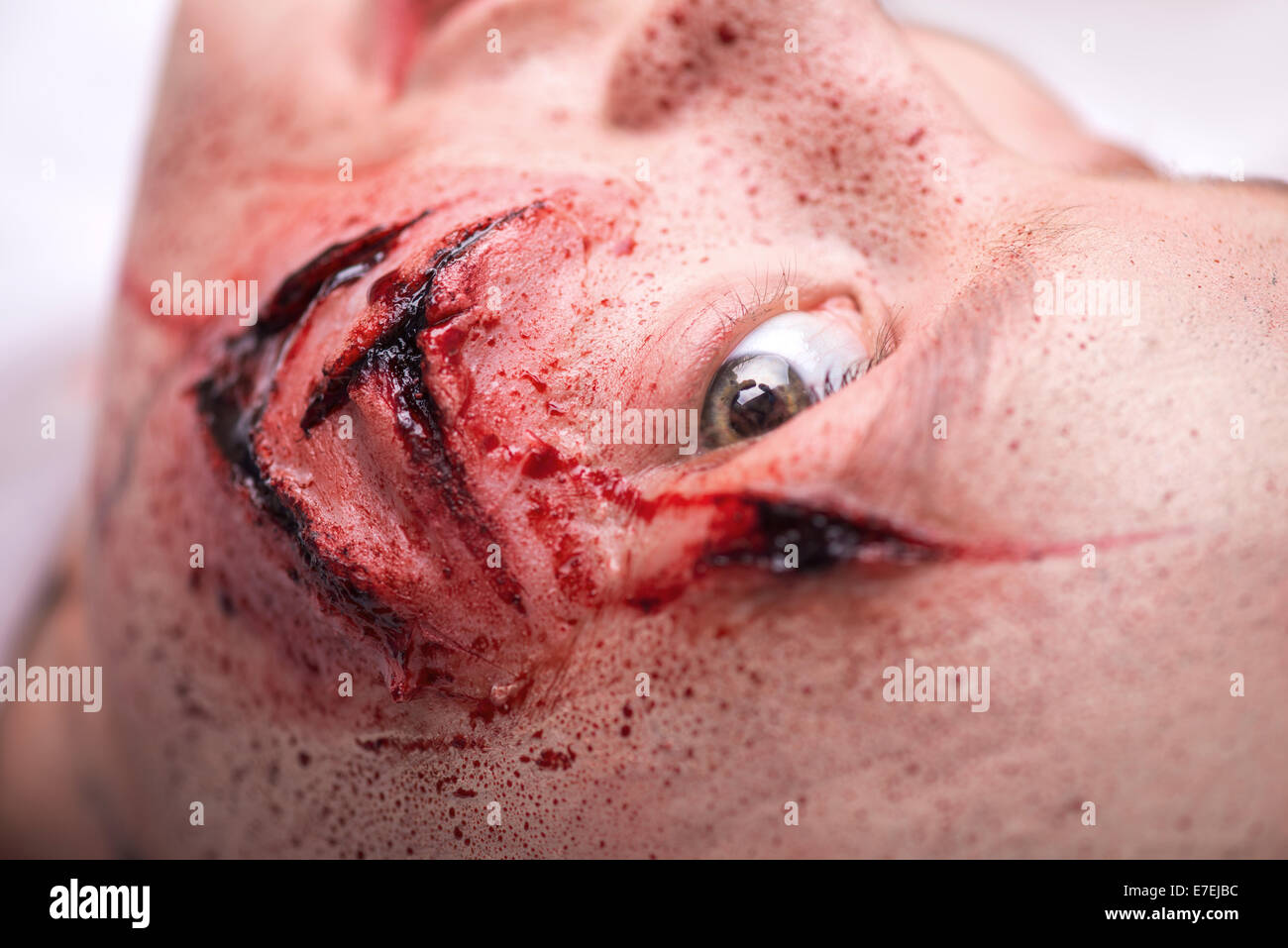 Woman with the gash prepared for operation - Stock Image