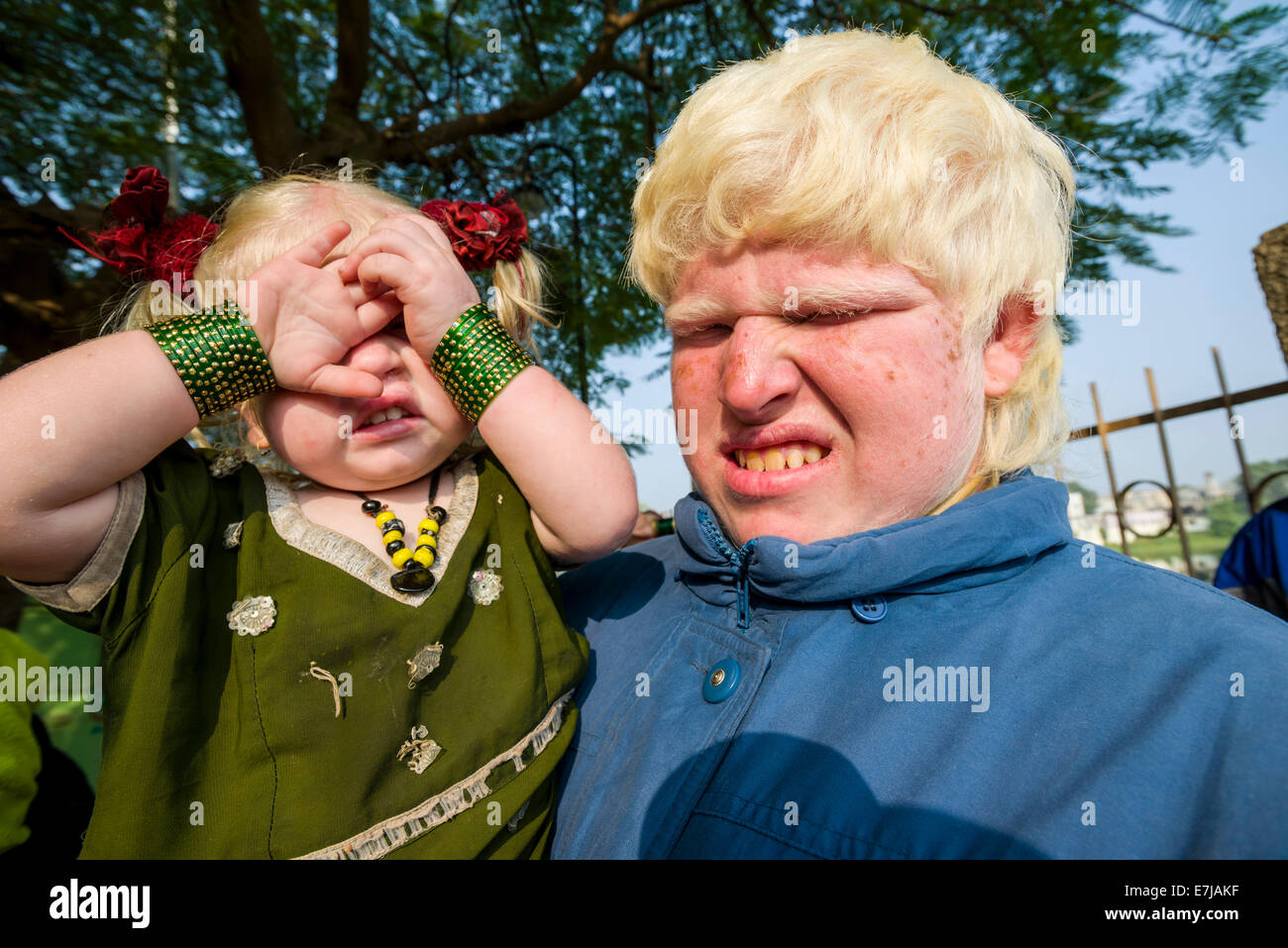 Two albinos covering and closing their sensitive eyes from the sunlight, Bhavnagar, Gujarat, India - Stock Image