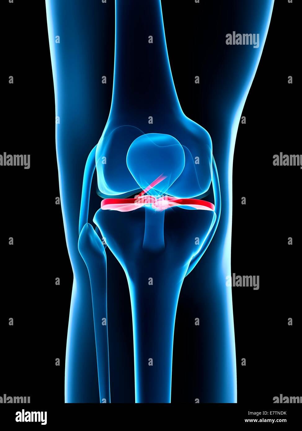 Human Knee Ligaments Stock Photos & Human Knee Ligaments Stock ...