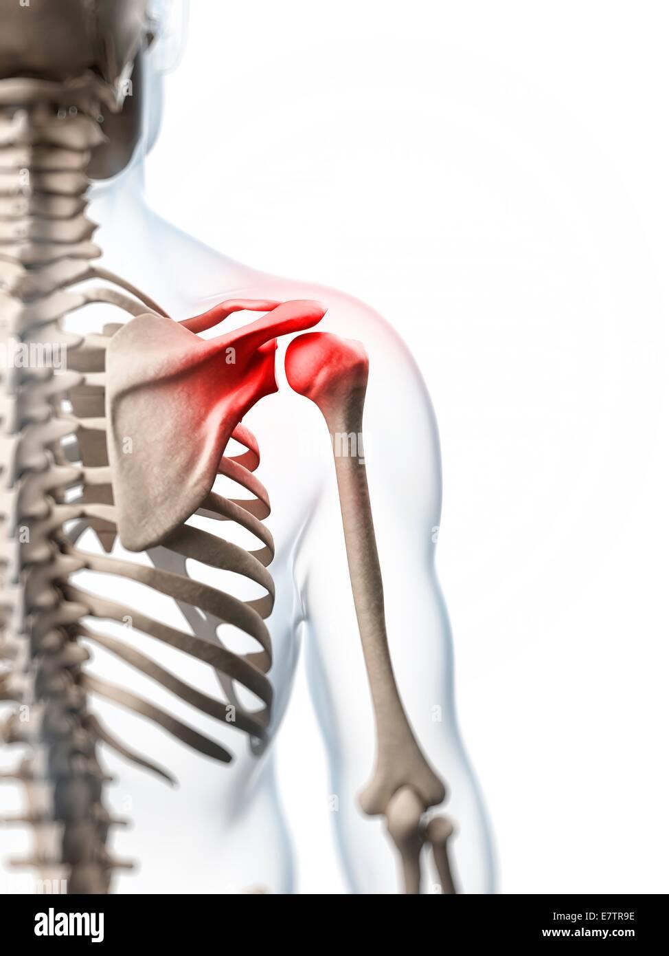 Human shoulder pain, computer artwork Stock Photo: 73689210 - Alamy