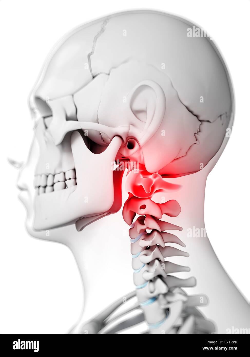 Human Neck Bones Computer Artwork Stock Photo 73689579 Alamy