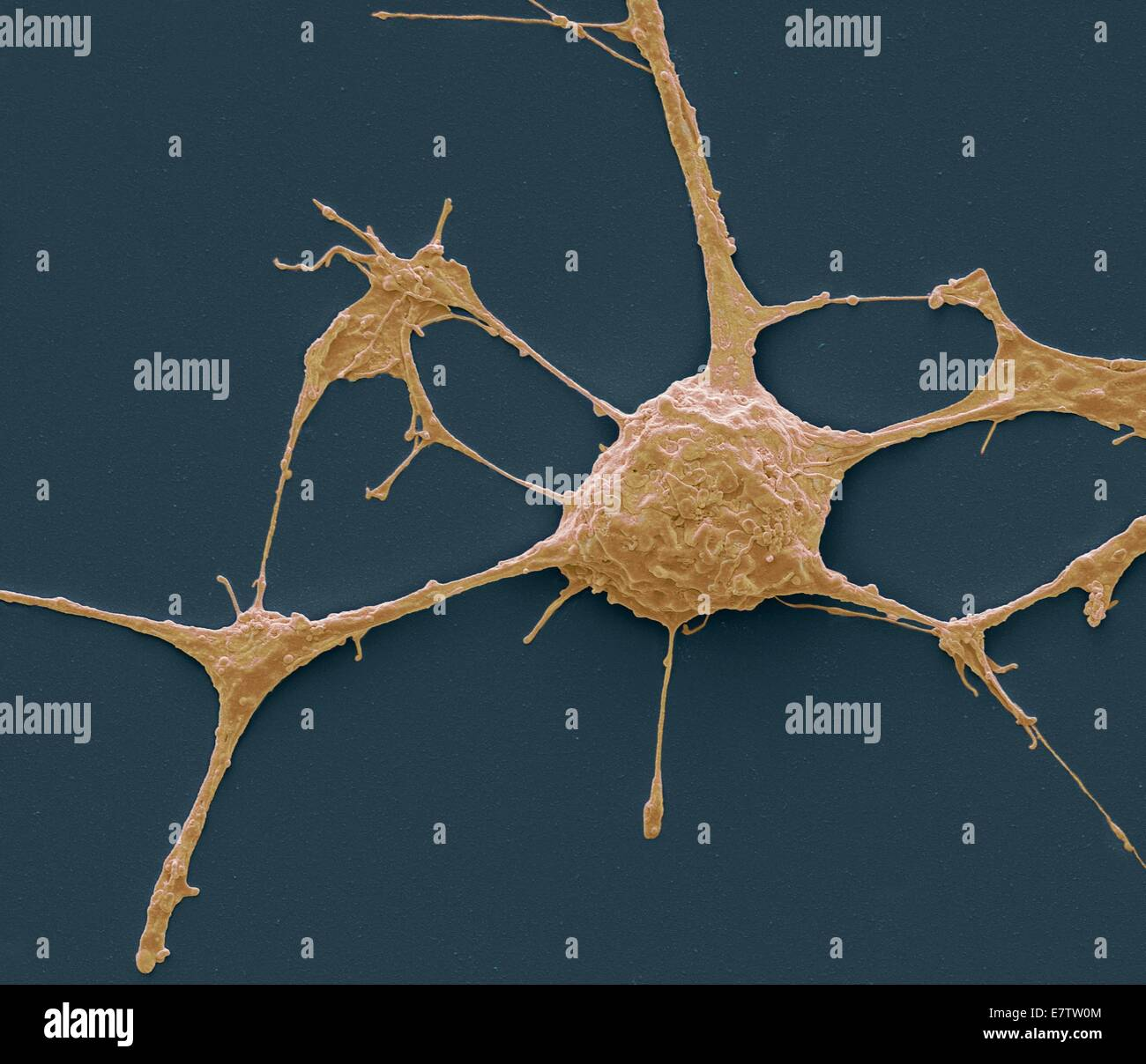 Neurone. Scanning electron micrograph (SEM) of a PC12 neurone in culture.The PC12 cell line, developed from a pheochromocytoma - Stock Image