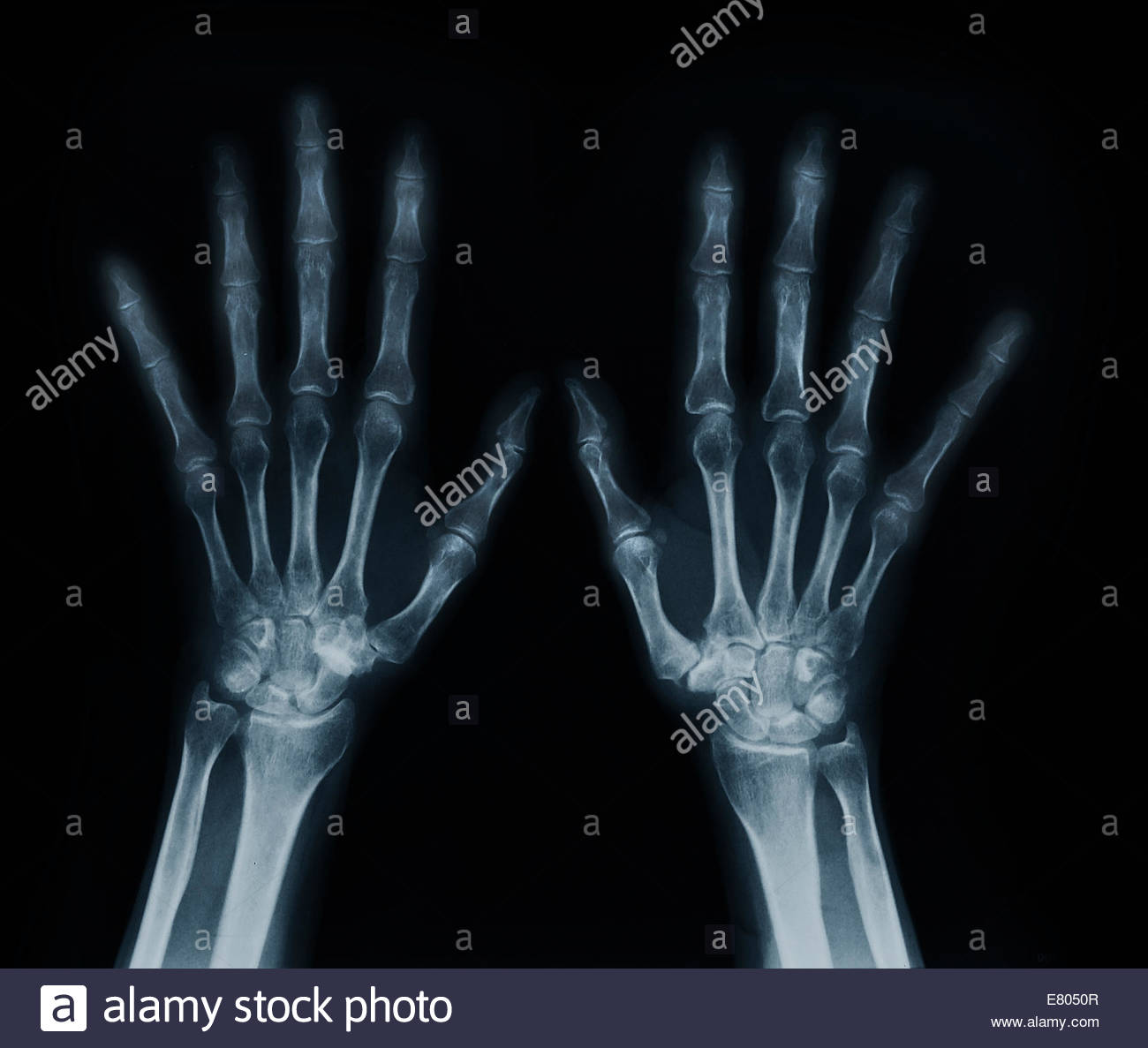 Human Fingers Anatomy Stock Photos & Human Fingers Anatomy Stock ...