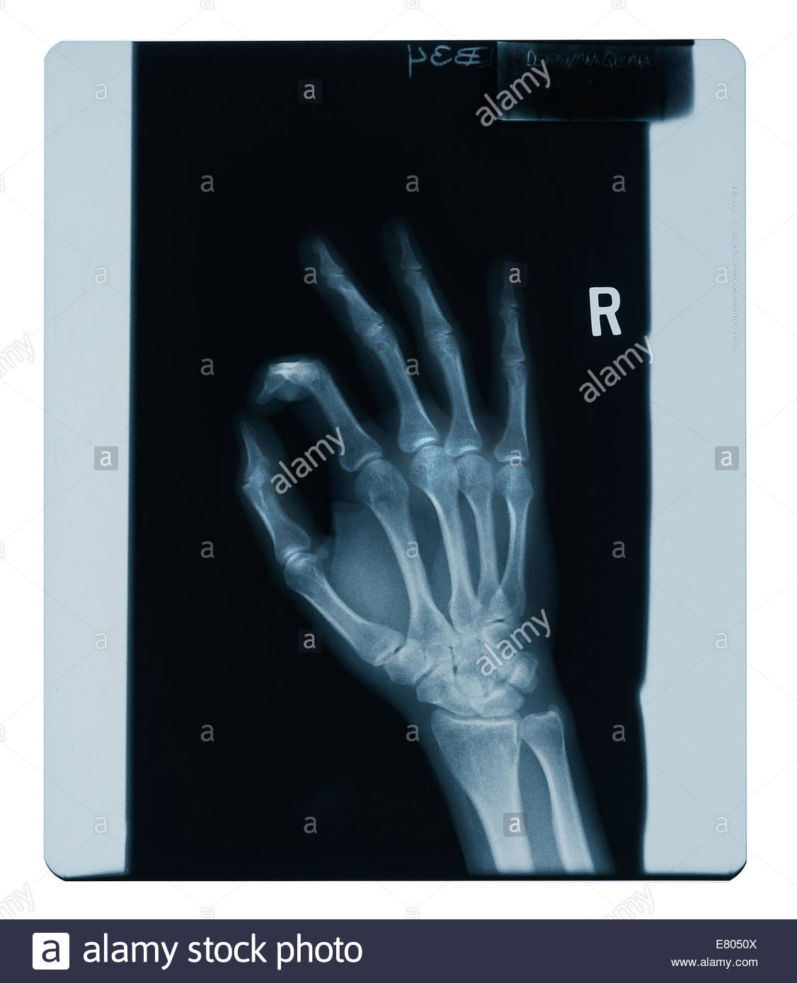 X-ray images of hand & fingers & body parts. Check my portfolio (Bocah Images) for more. - Stock Image