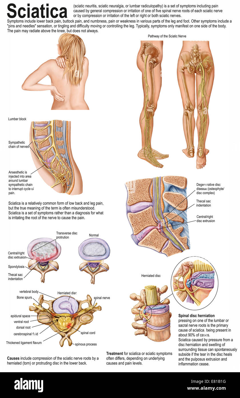 Medical chart showing the signs and symptoms of sciatica. - Stock Image