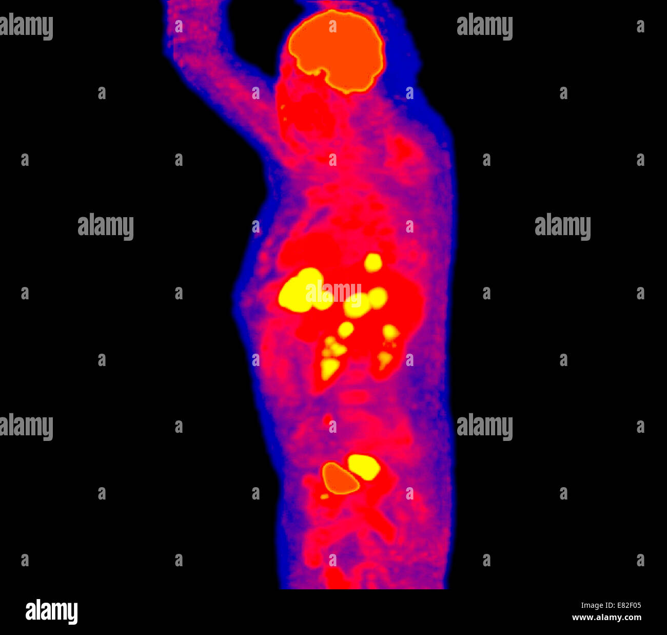 Positron emission tomography (PET) scans of a patient with a rectum cancer and hepatic metastasis. - Stock Image
