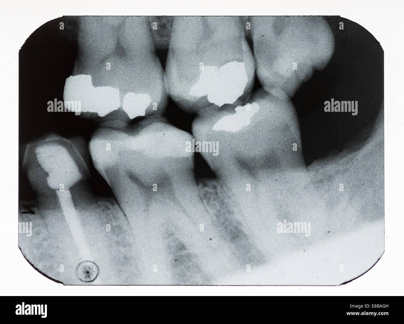 dental xray showing fillings and missing teeth - Stock Image