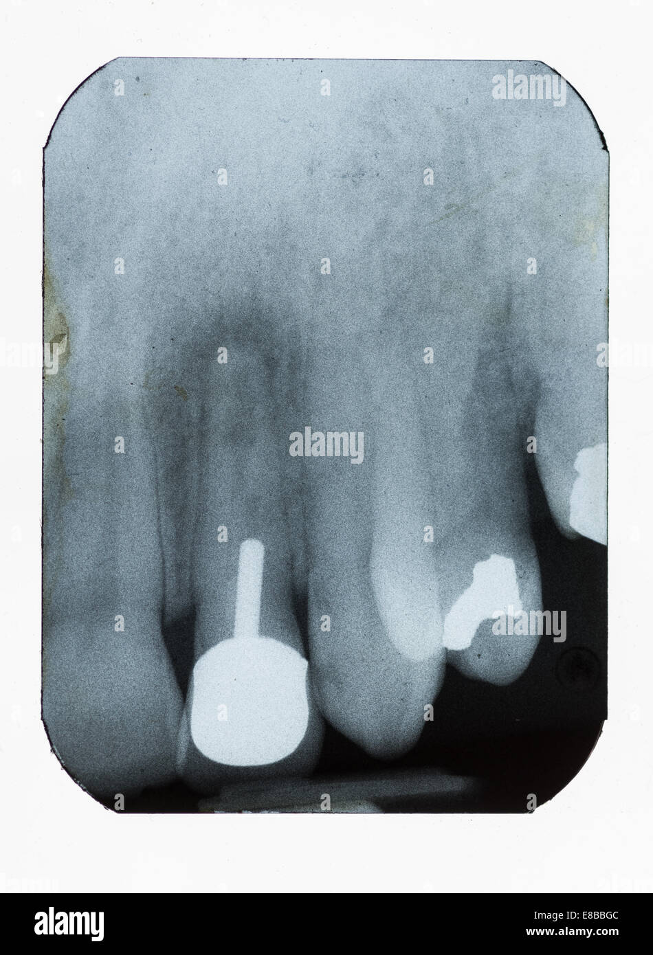dental xray showing fillings implant and bone density loss - Stock Image