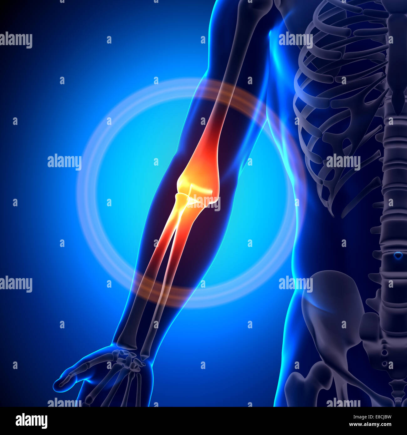 Elbow Anatomy - Anatomy Bones Stock Photo: 74036589 - Alamy
