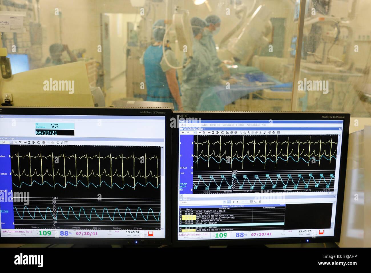 Heart surgery monitoring (catheterism) - Stock Image