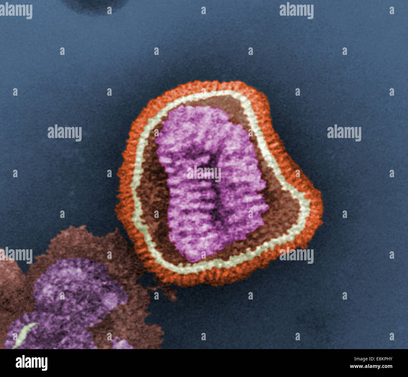 This colorized negative-stained transmission electron micrograph (TEM) depicts ultrastructural details of an influenza - Stock Image