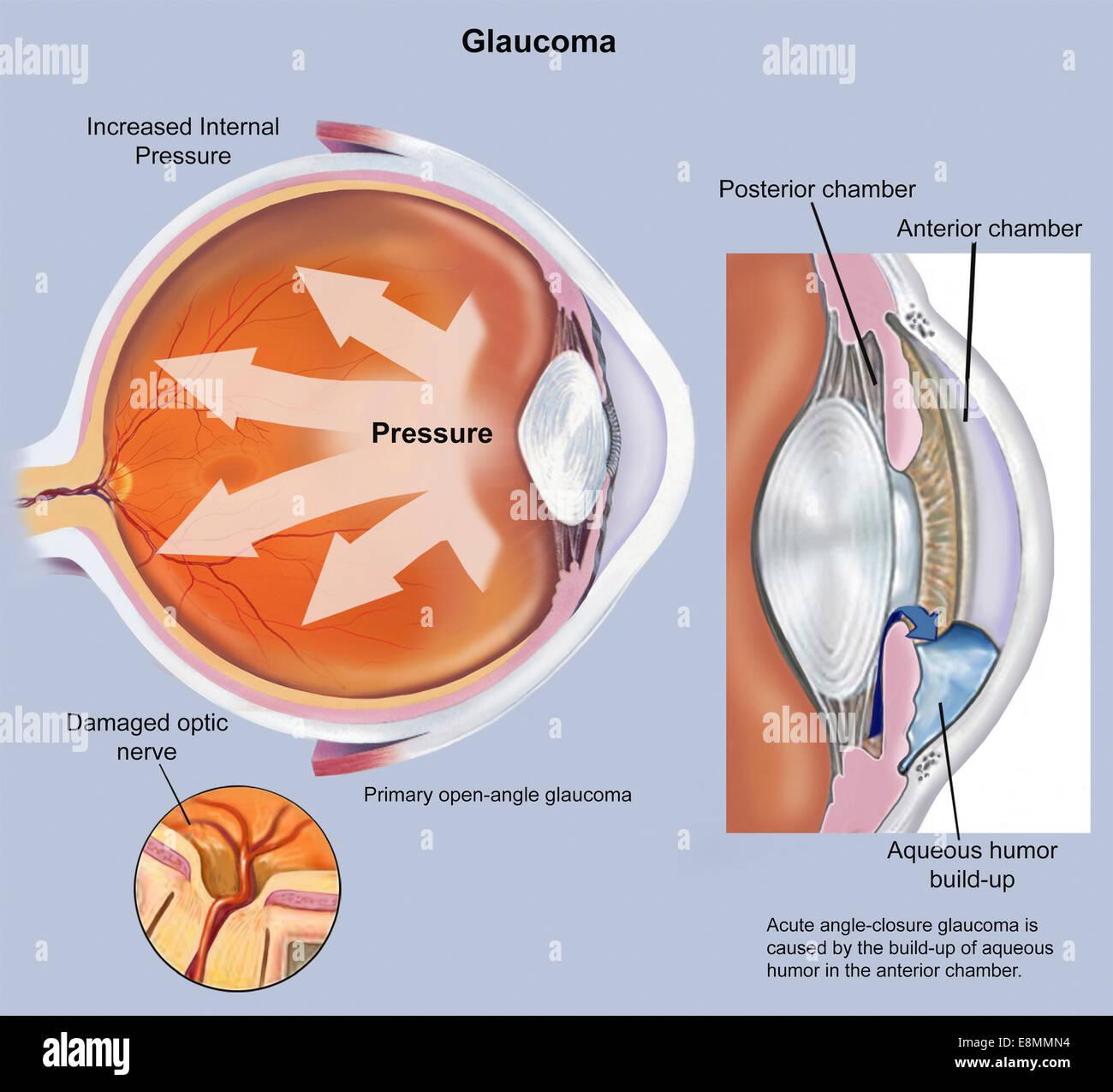 Retina of eye with glaucoma Stock Photo: 74214032 - Alamy