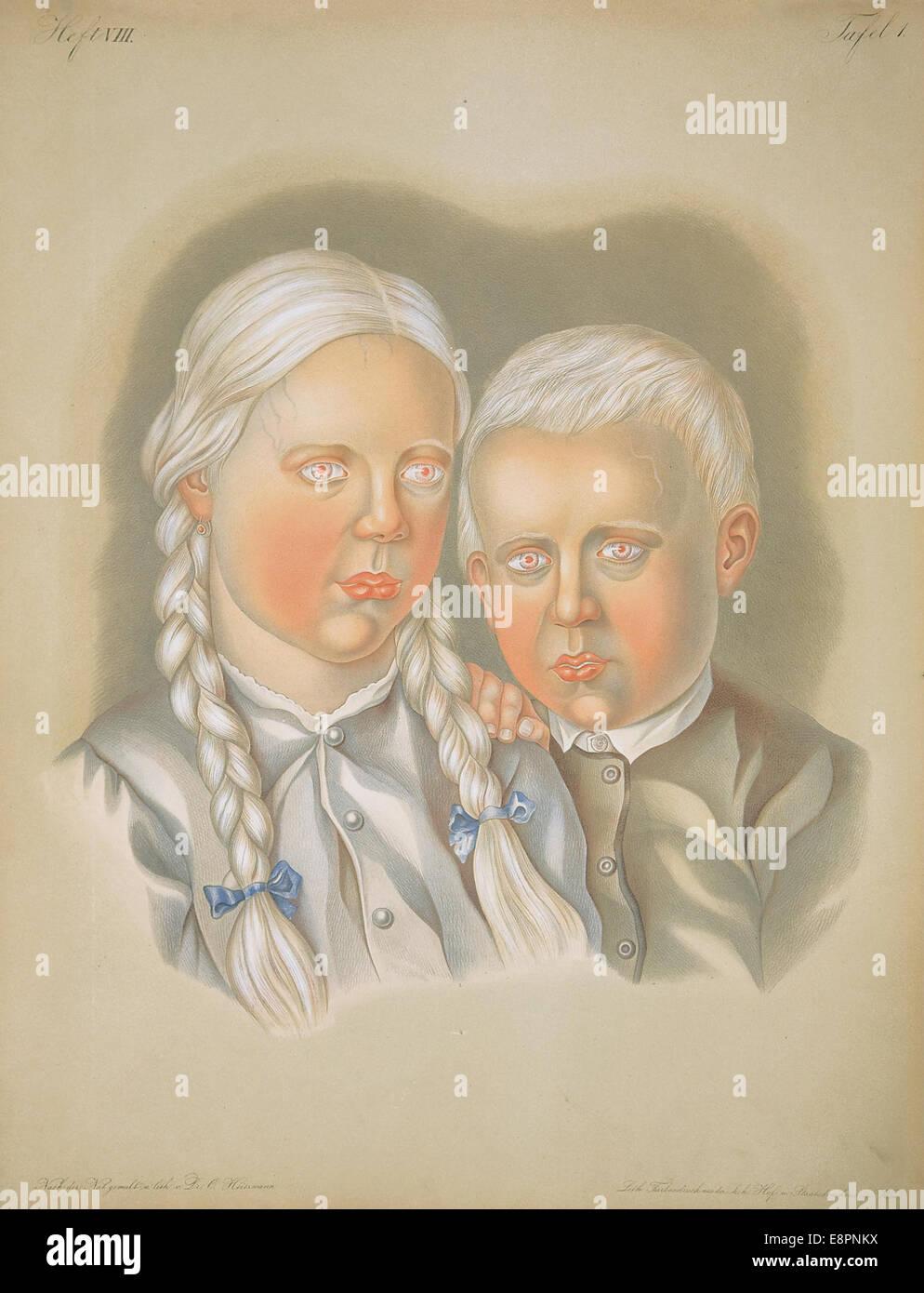 Appears In: Hebra, Ferdinand, Ritter von, 1816-1880. Atlas der Hautkrankheiten Image Description: Image of a lithograph Stock Photo