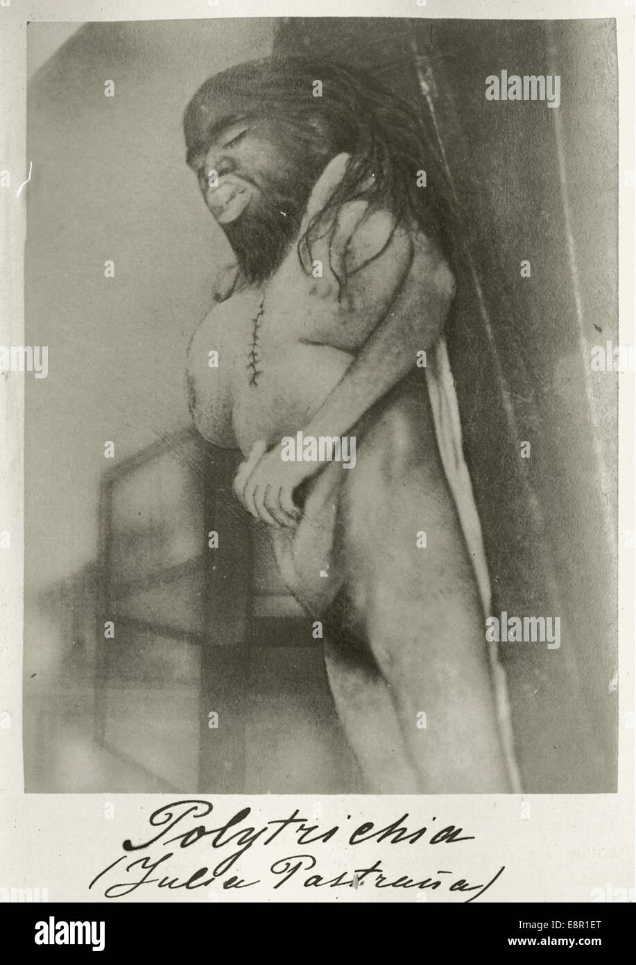 Appears In: Mansurov, N. (Nikolaĭ Porfirʹevich), 1834-1892. Klinicheskiĭ sbornik po dermatologīi.   Image Description: - Stock Image