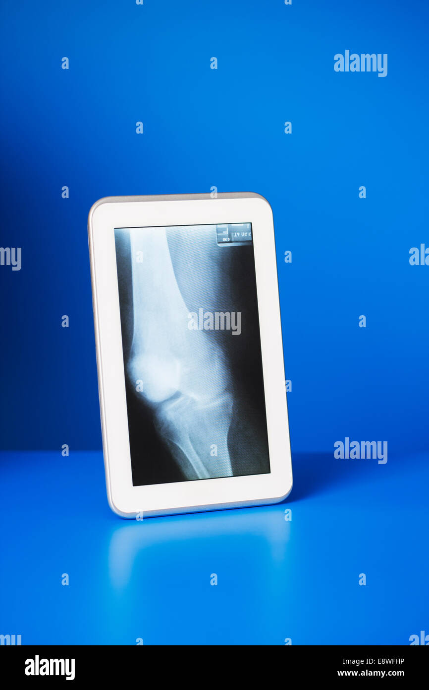 Digital tablet displaying x-ray on blue counter - Stock Image