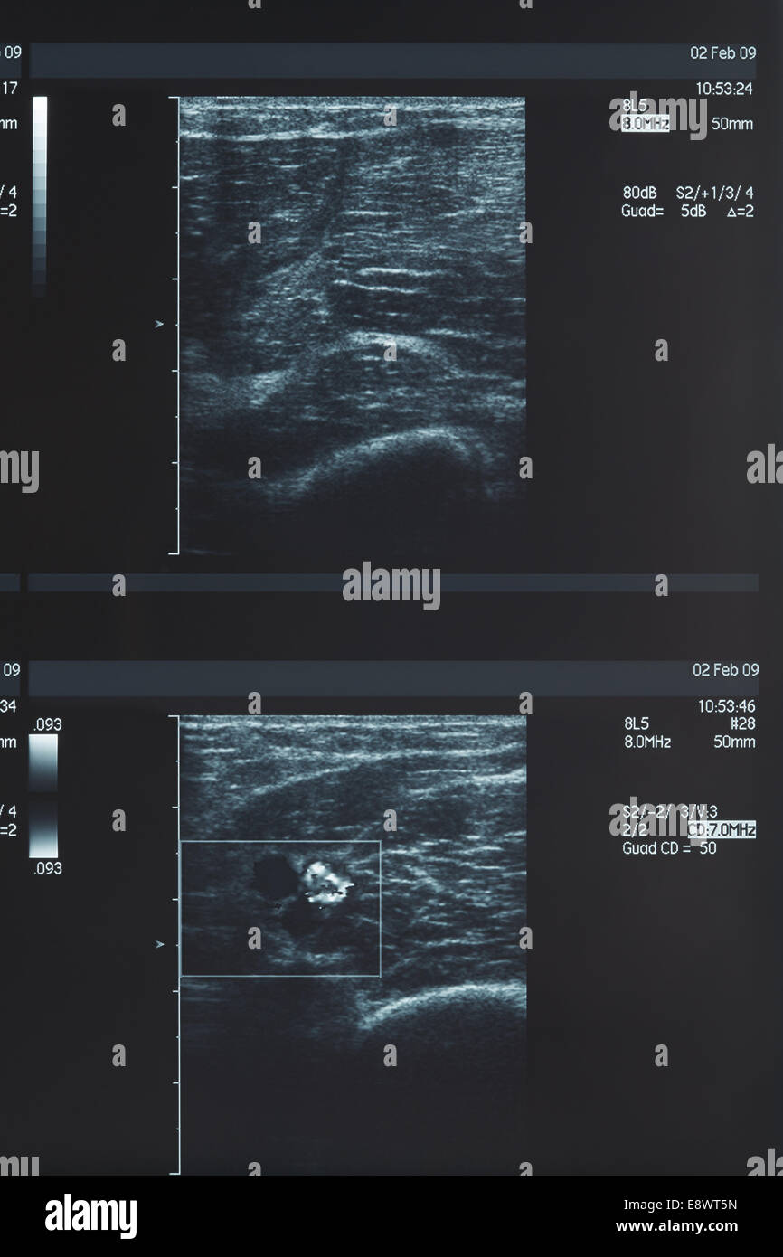 X-ray, muscle ultrasound - Stock Image