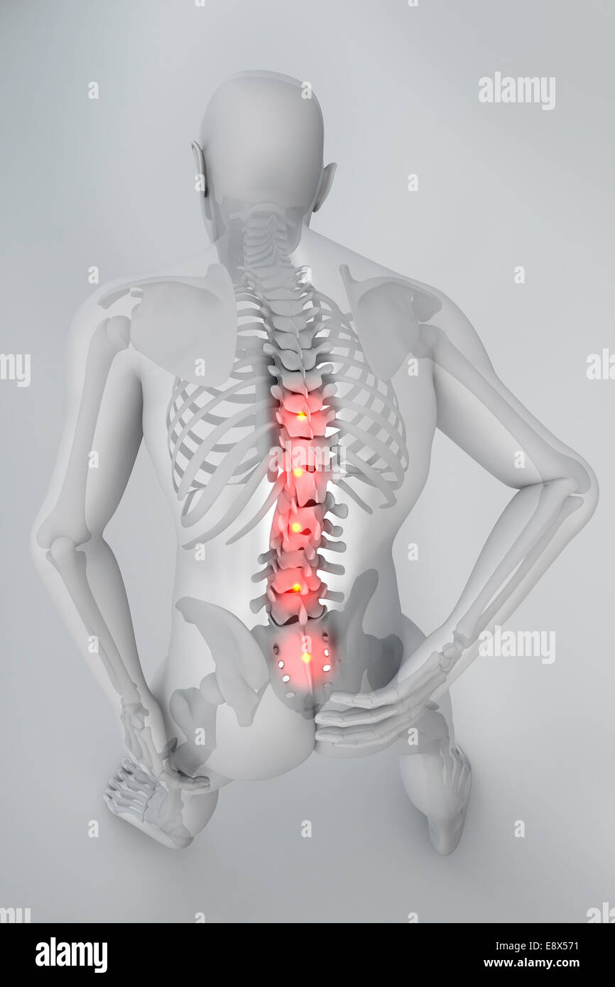 man seen from behind with pain in spine stock photo 74333589 alamy
