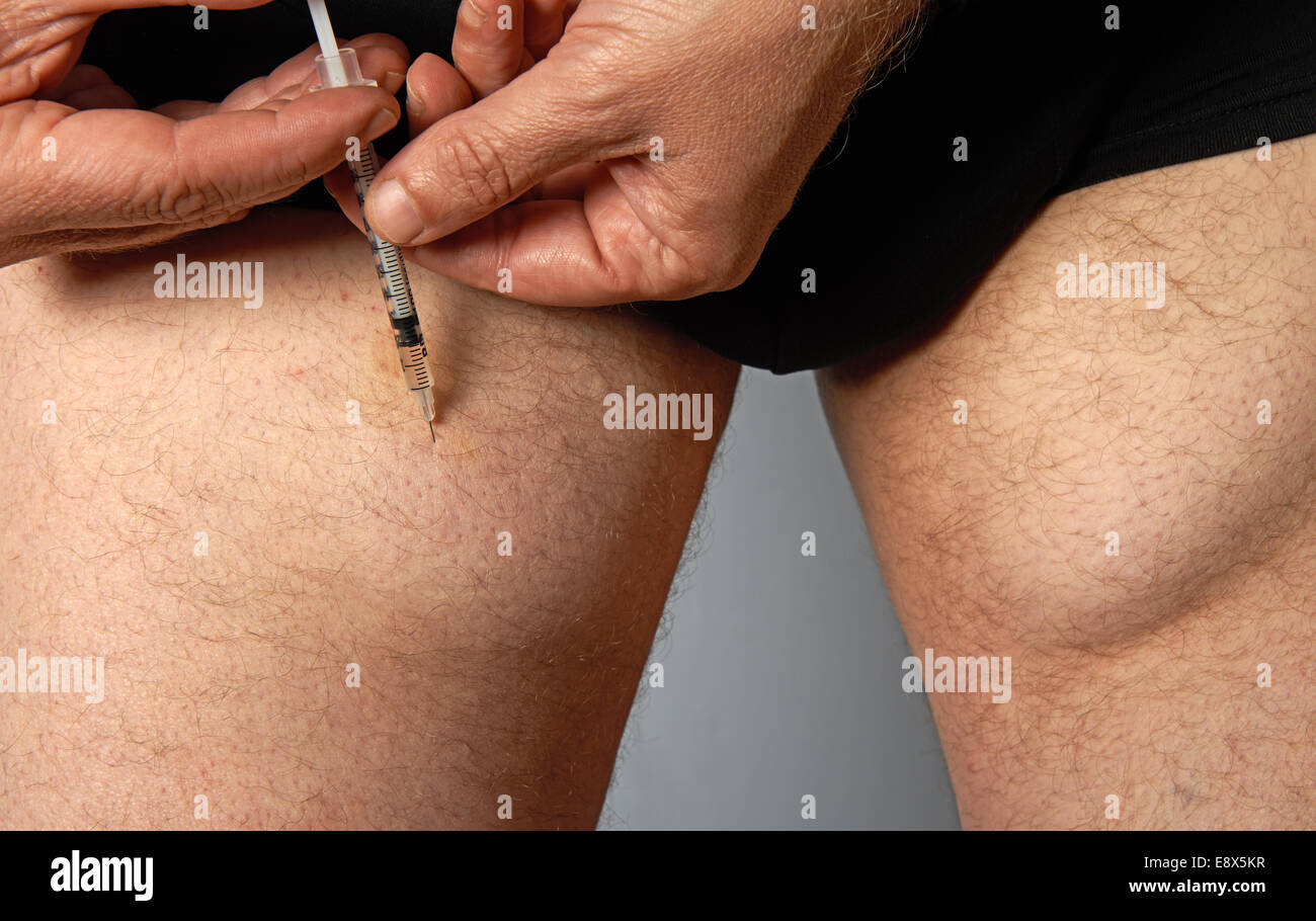 Diabetic man injecting insulin into his leg which over the years has caused lumps under the skin - Stock Image