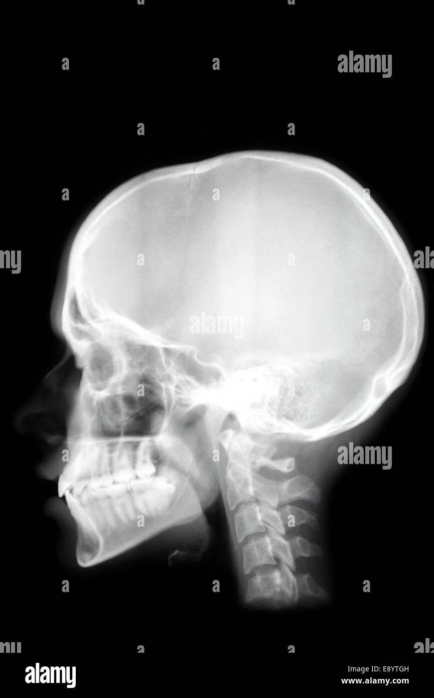 Profile View With A Human Skull X Ray On Black Background Stock