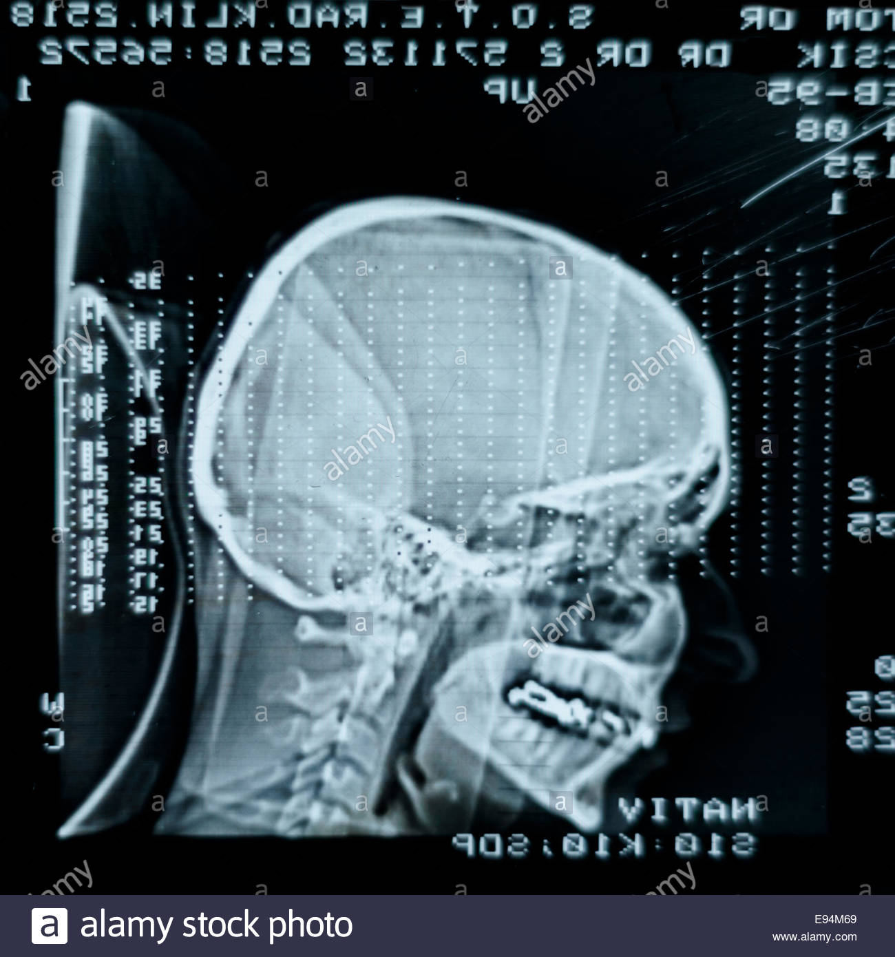 Glowing and radiant MRI scan - Stock Image