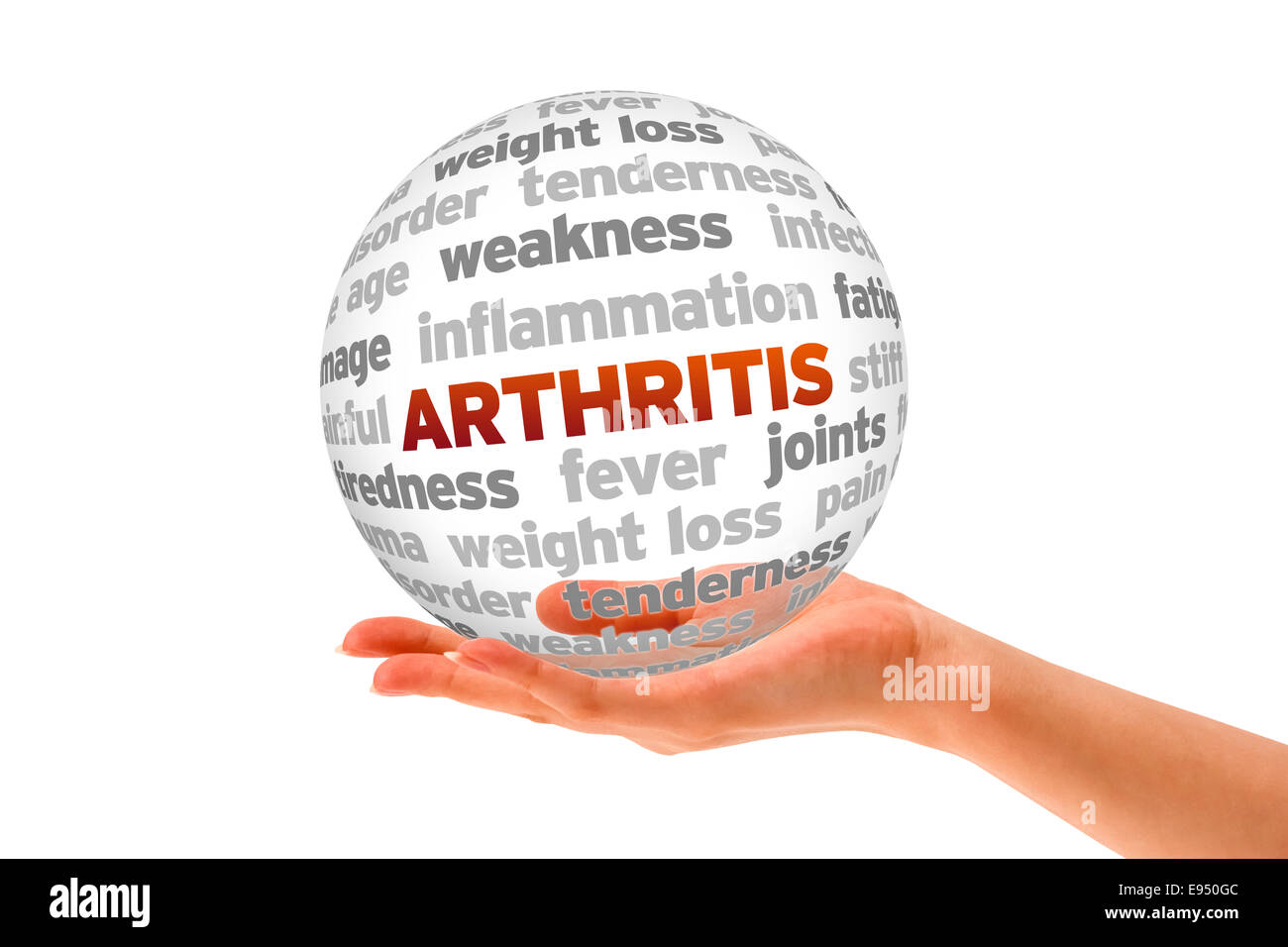 Arthritis - Stock Image
