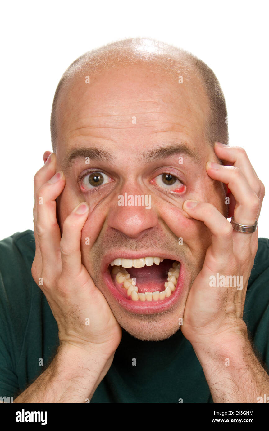 Stressed out man has reached his limit and claws at his face in distress. - Stock Image