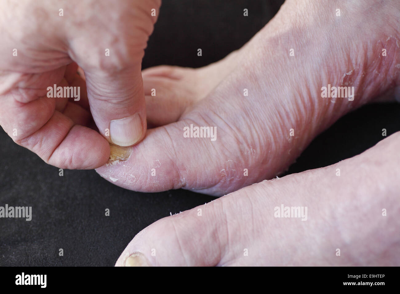 a man s foot with toenail fungus and dry peeling skin from