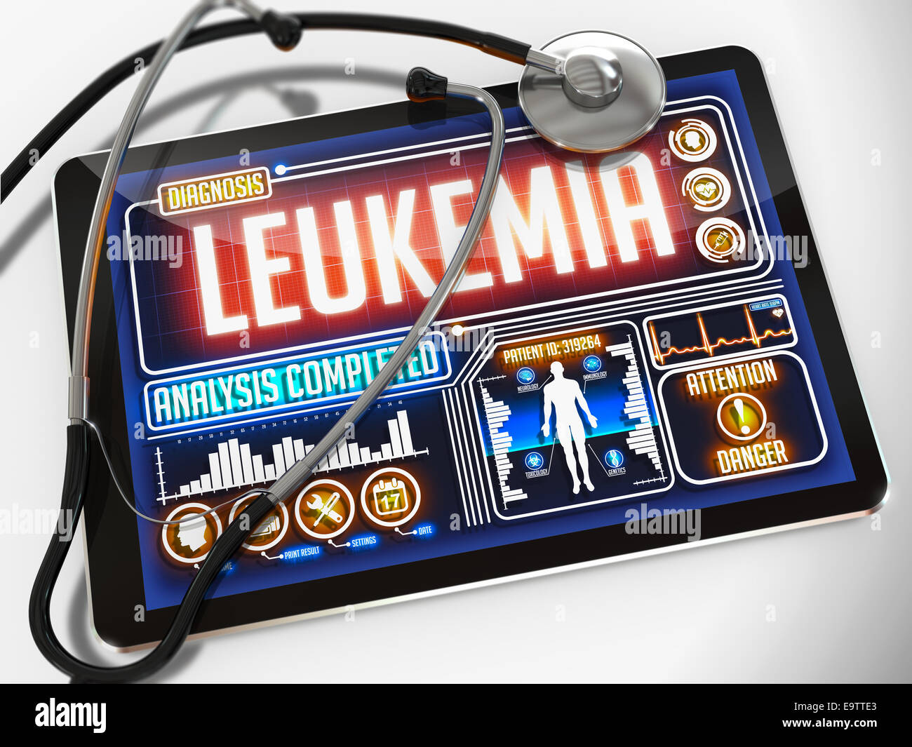 Medical Tablet with the Diagnosis of Leukemia on the Display and a Black Stethoscope on White Background. - Stock Image