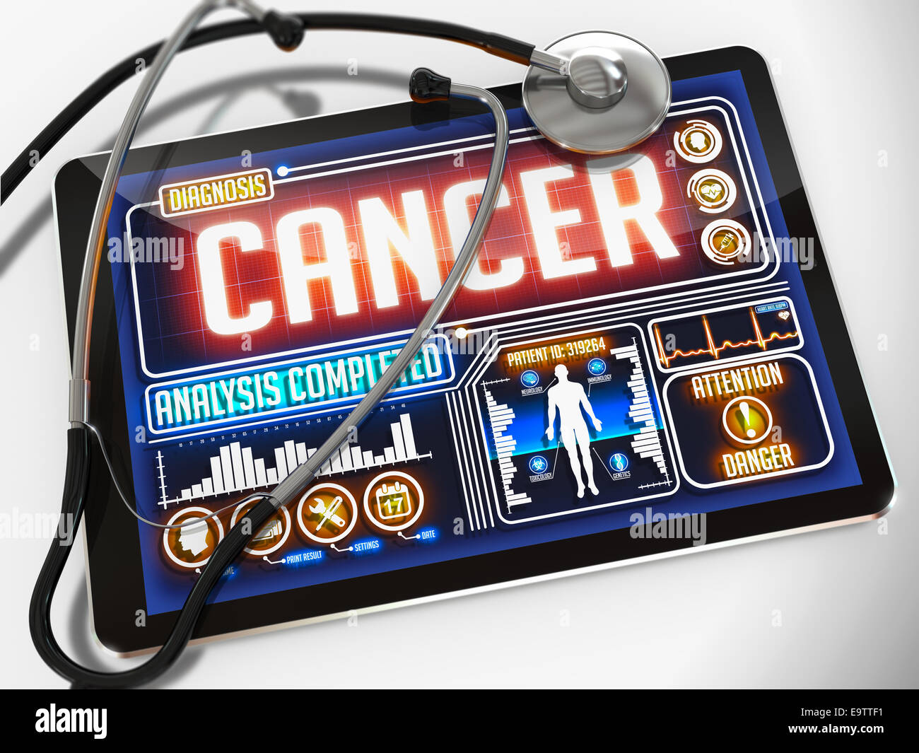 Medical Tablet with the Diagnosis of Cancer on the Display and a Black Stethoscope on White Background. - Stock Image