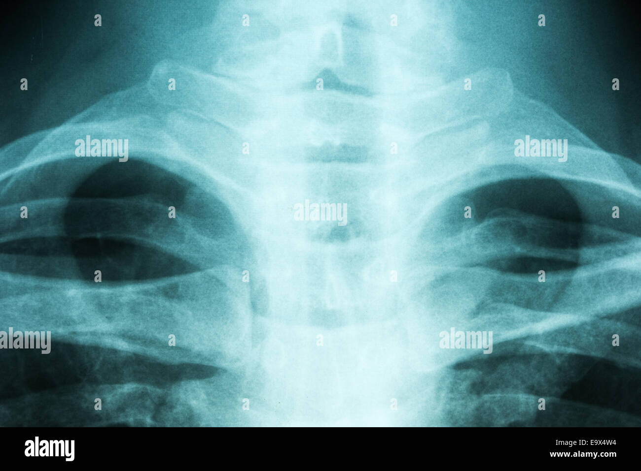 Medical X-Ray Of Thoracic Vertebral Column - Stock Image