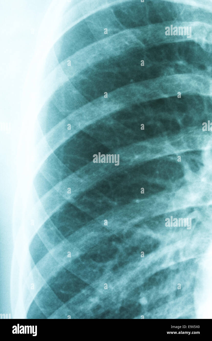 Medical X-Ray Of Pneumonia Infected Lungs - Stock Image