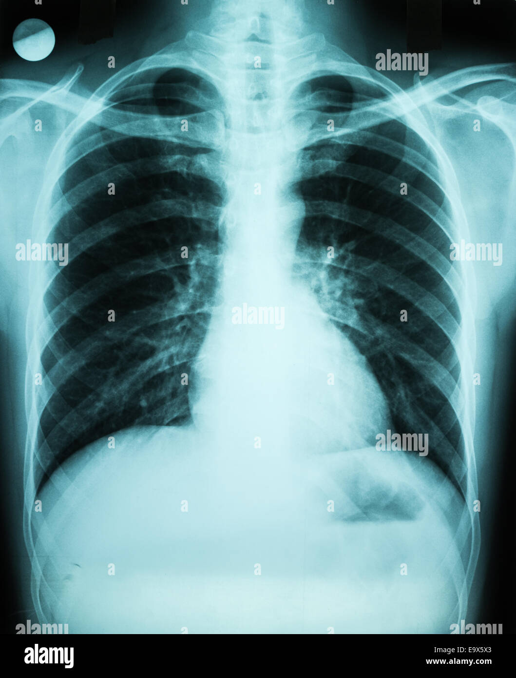 Pulmonary X-Ray Of Patient Lungs - Stock Image