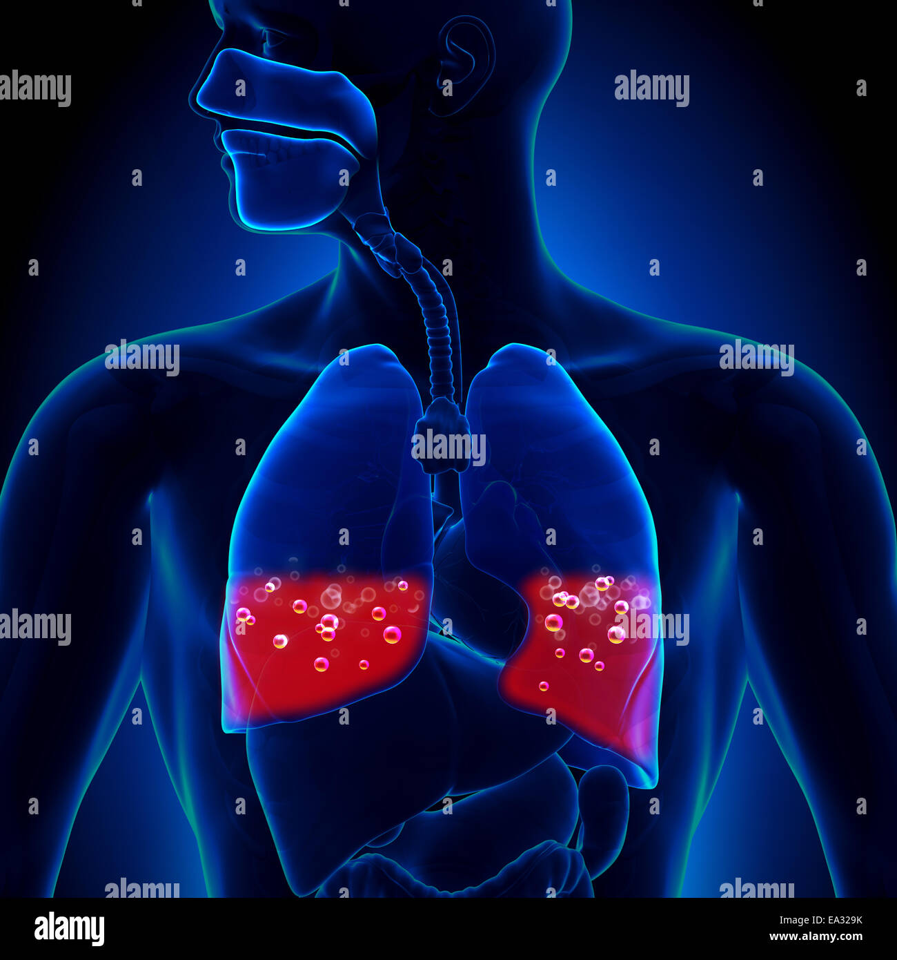 Pulmonary Edema - Blood in Lungs - Stock Image