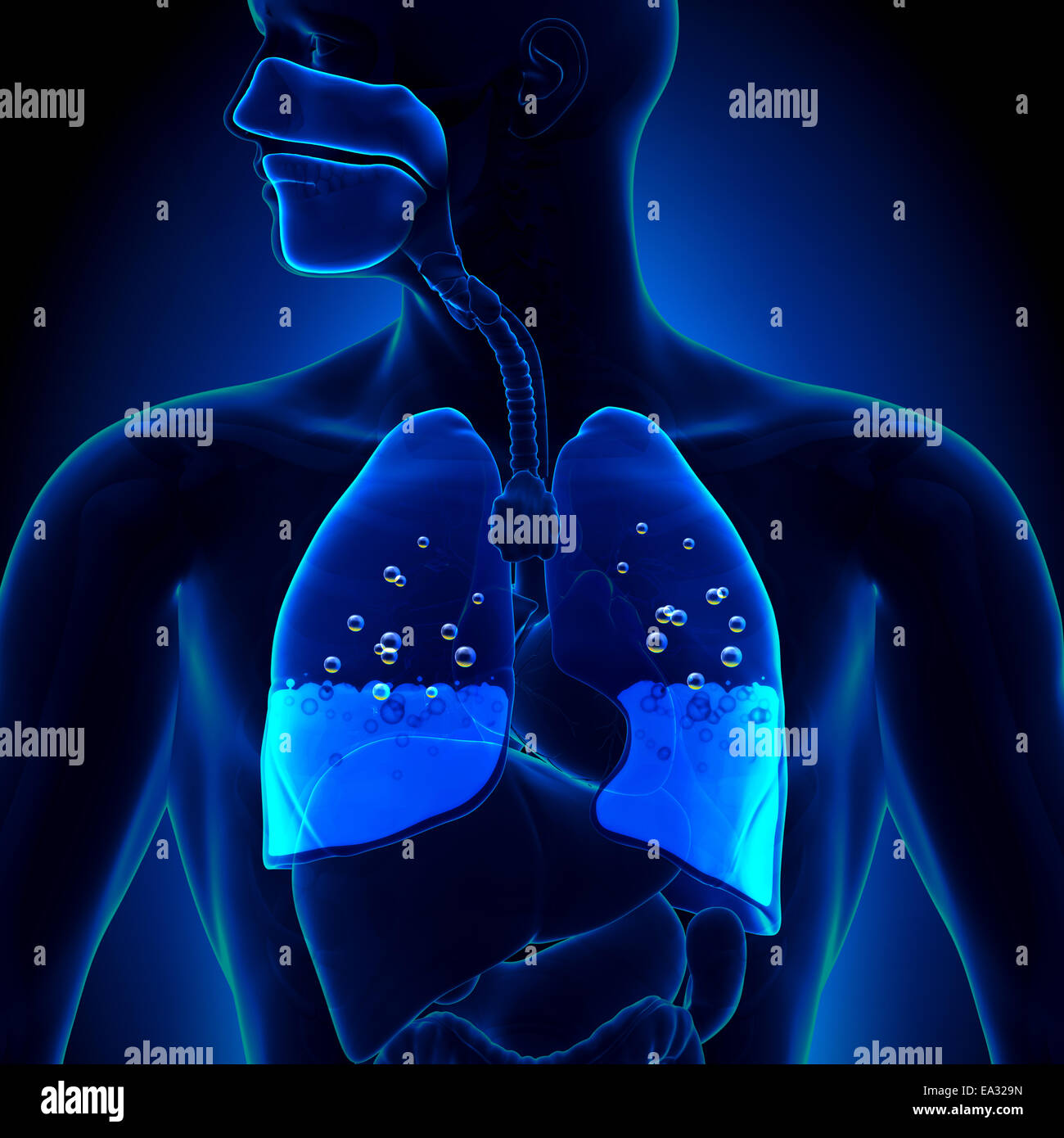 Pulmonary Edema - Water in Lungs - Stock Image
