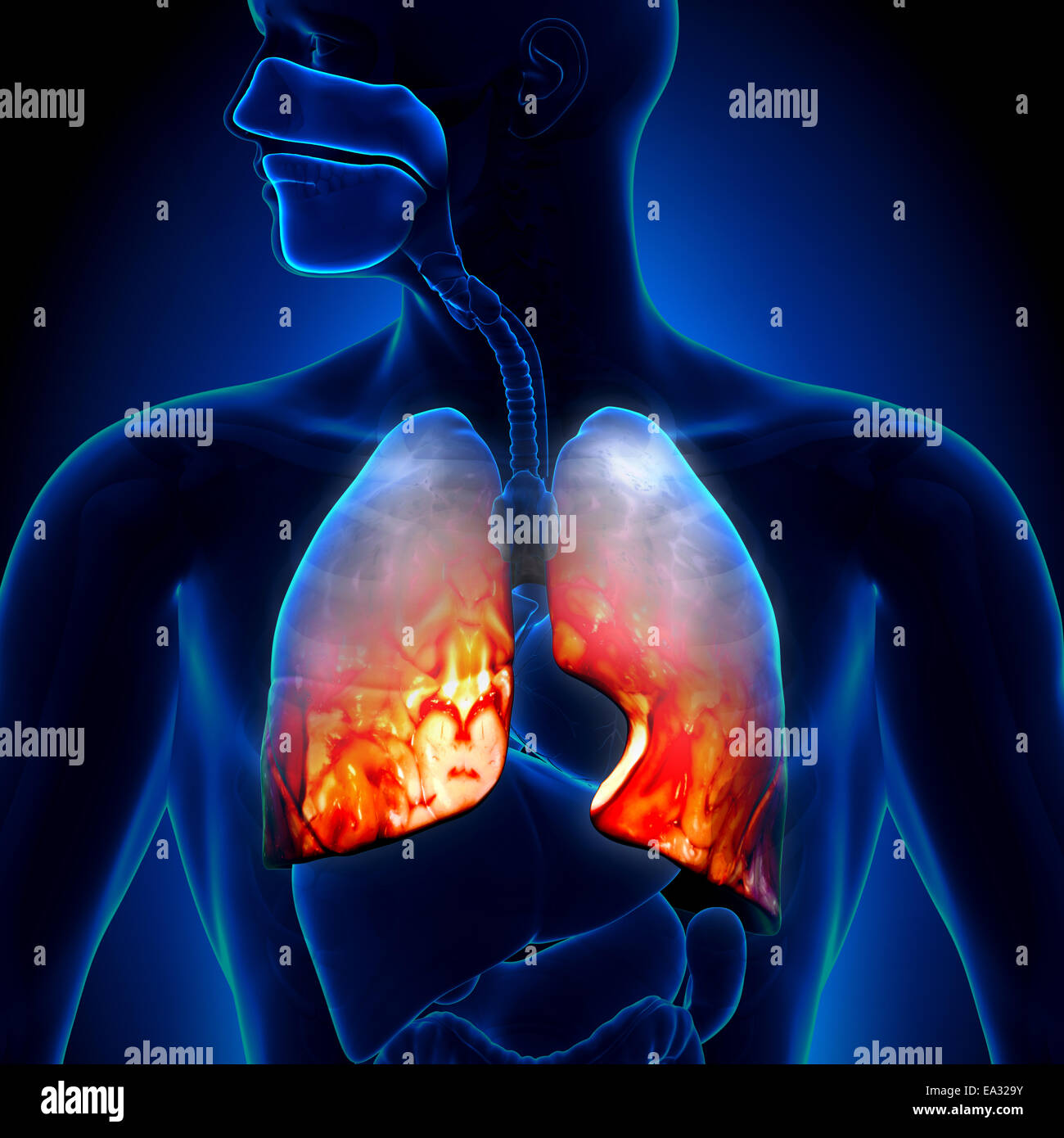 Pneumonia - Lungs Inflammatory Condition - Stock Image