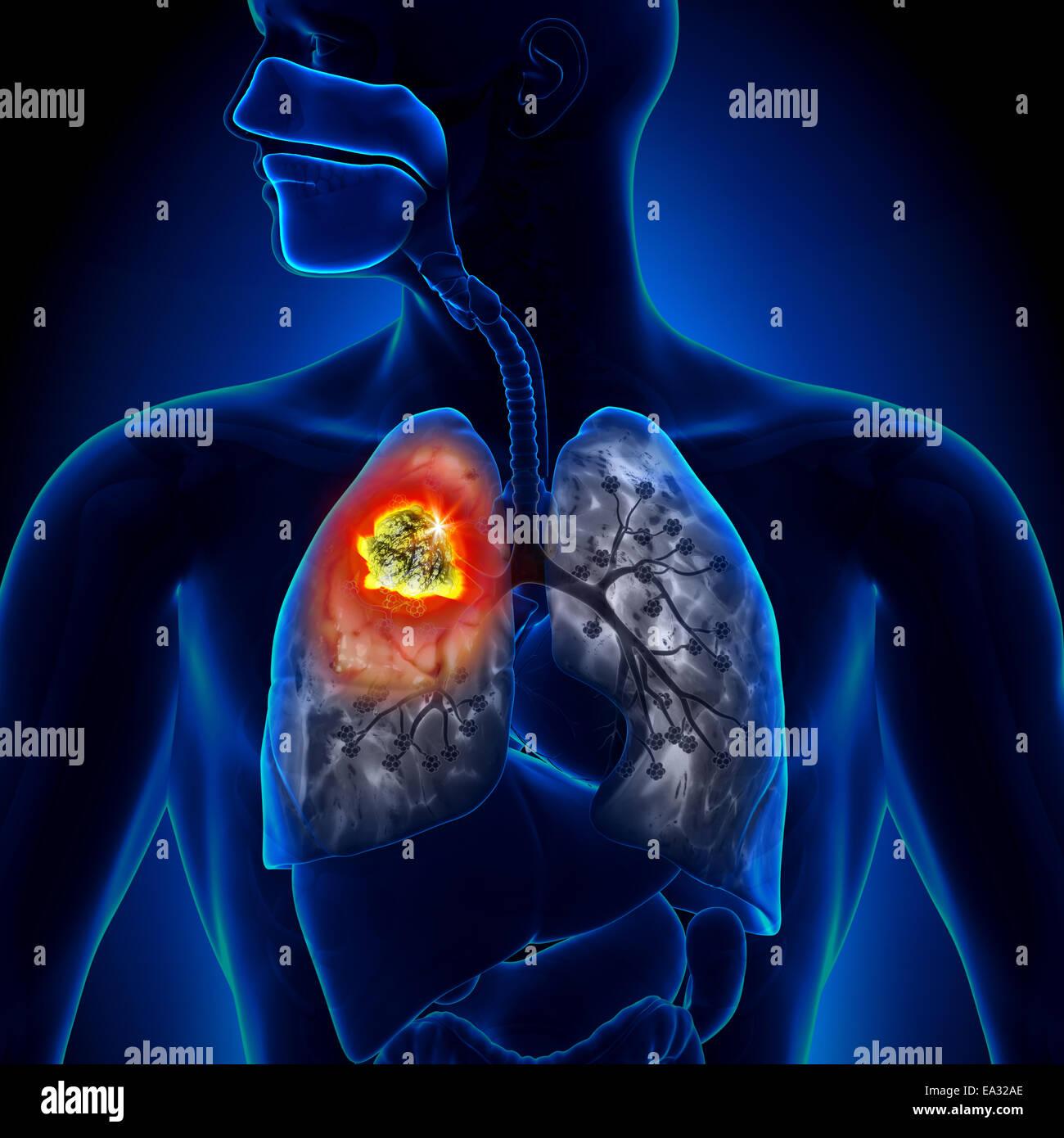Lungs Anatomy Smoker Stock Photos & Lungs Anatomy Smoker Stock ...