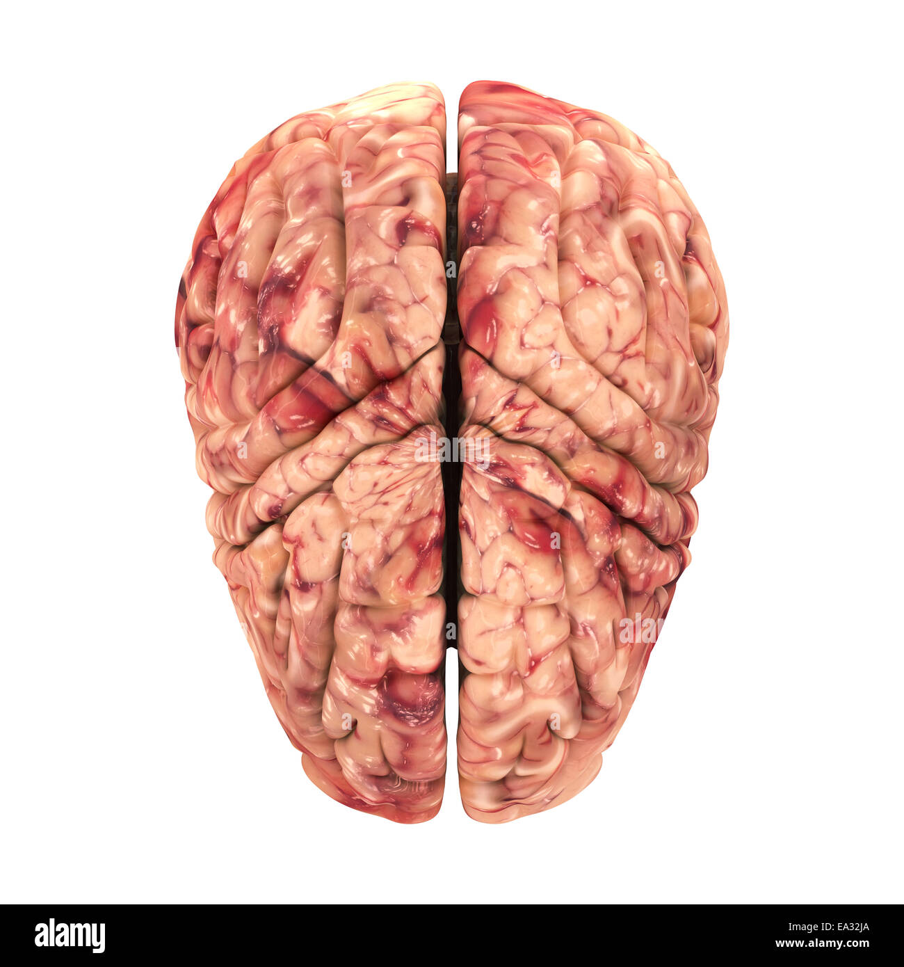 Brain Surgery Stock Photos Brain Surgery Stock Images Alamy