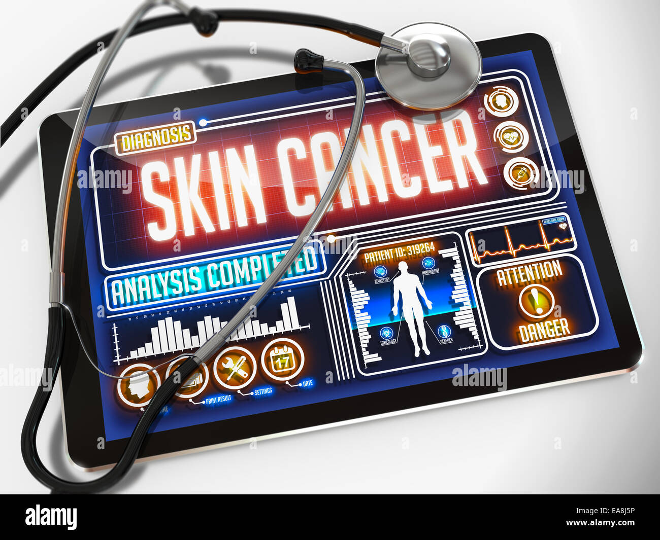 Medical Tablet with the Diagnosis of Skin Cancer on the Display and a Black Stethoscope on White Background. - Stock Image