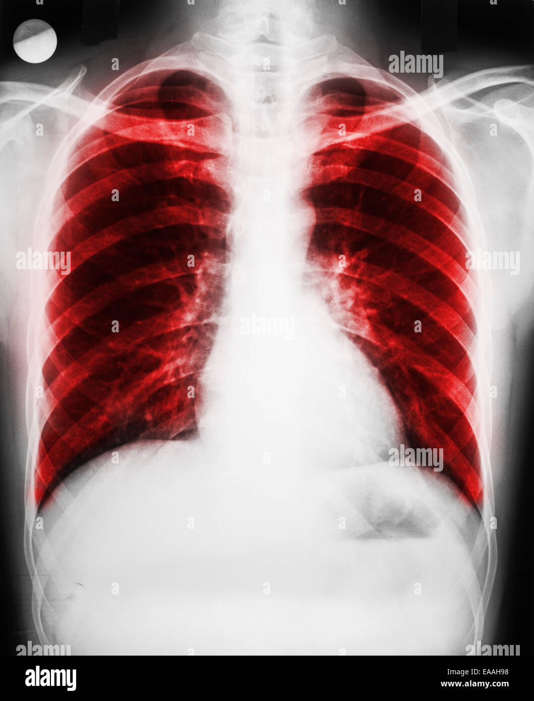 Pulmonary Disease On Patient Lungs X-Ray - Stock Image