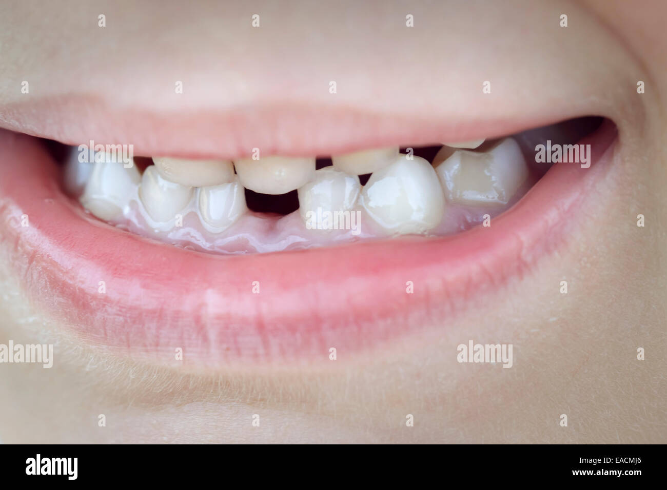 tooth missing child mouth caucasian 6 years boy - Stock Image