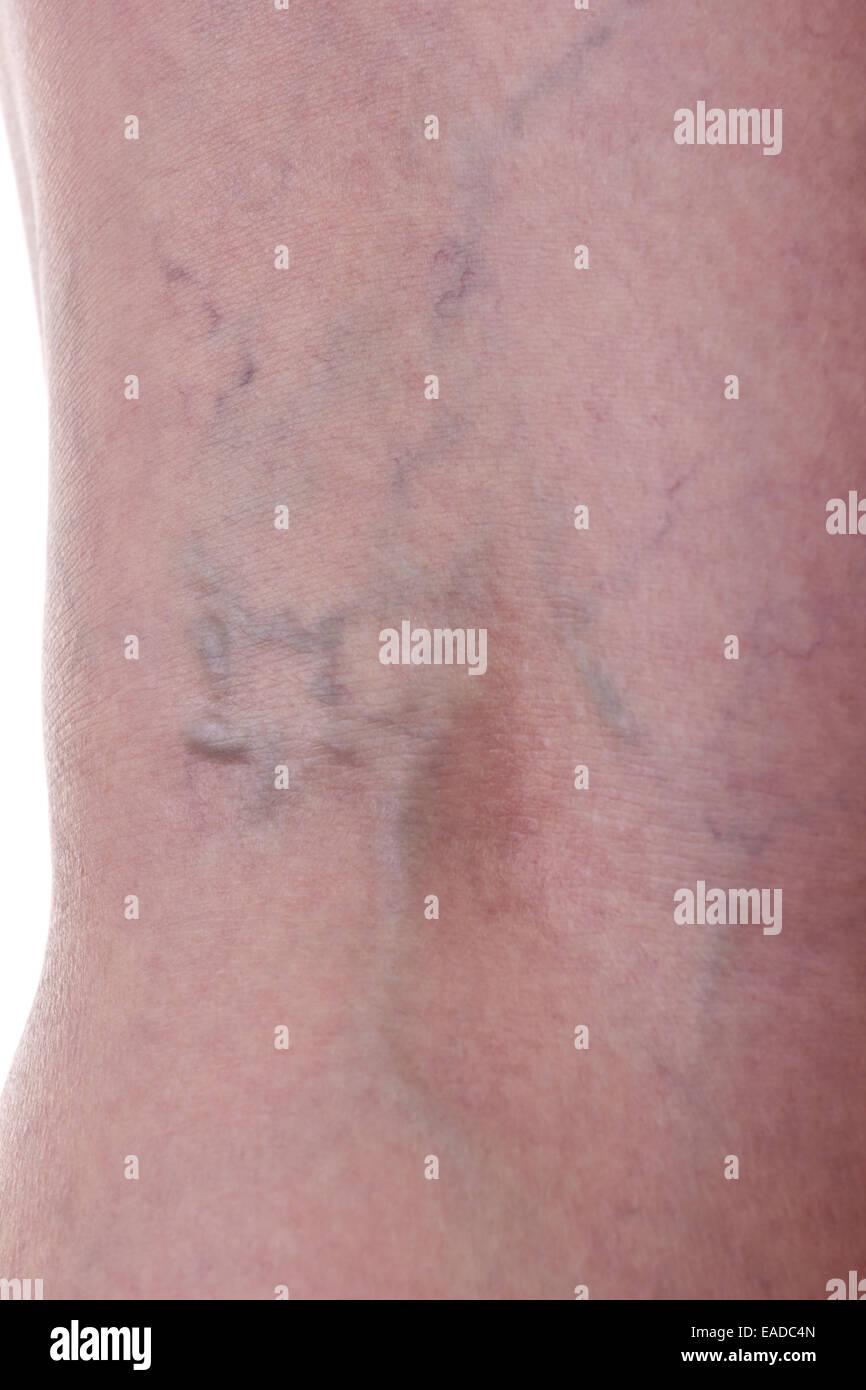 Leg with varicose veins - Stock Image