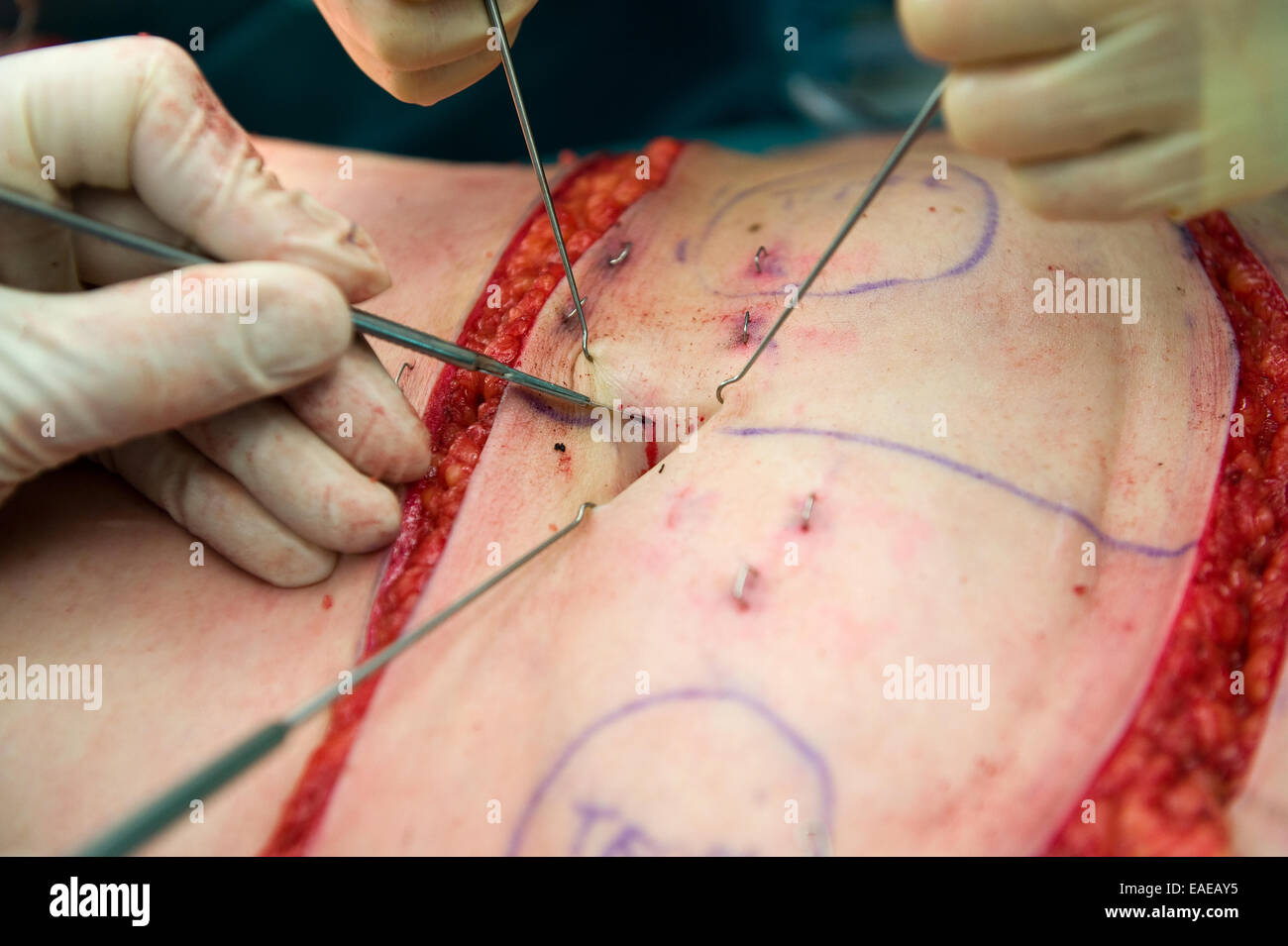 A surgeon making an incision near the belly button during an operation - Stock Image