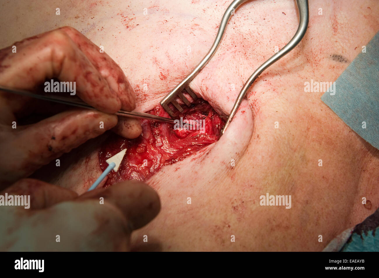 A surgeon is looking cautious for an important vain to operate - Stock Image