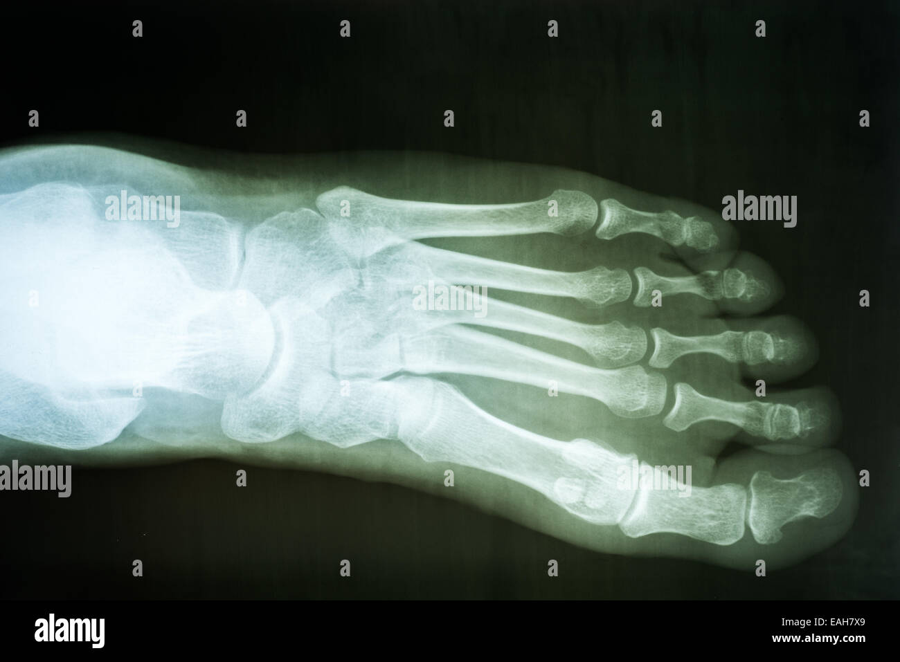 Human Foot X-Ray On Black Background - Stock Image